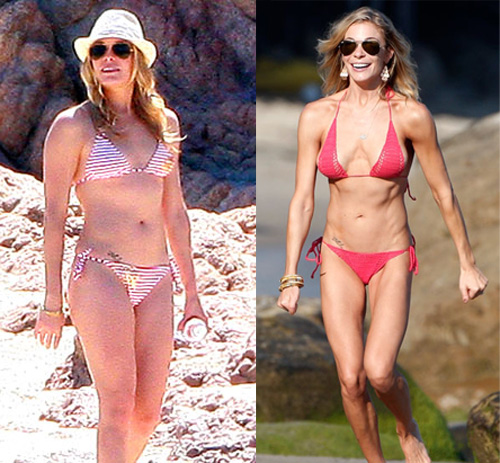 Skinny vs curvy poll